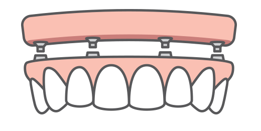 A full arch of teeth being replaced with dental implants
