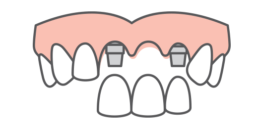 Multiple teeth being replaced on an arch of teeth