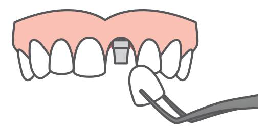 a single dental implant being placed onto an upper arch