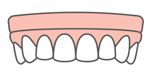An illustration of implant-supported dentures